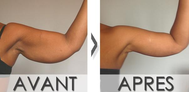liposuccion Tunisie : Avant brachioplastie - Après brachioplastie