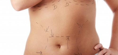 liposuccion abdominoplastie