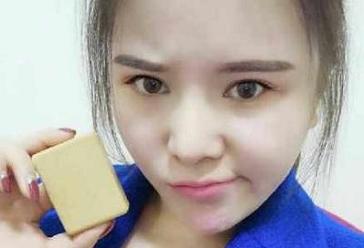 chinoise et savon de liposuccion