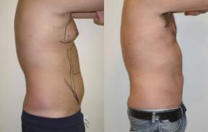 Liposuccion tunisie aspirer la graisse chez l'homme